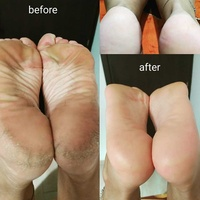Medical pedicure for women and men